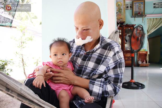Bước đường cùng của người cha bị ung thư hốc mũi ôm 2 đứa con thơ dại: 'Con sợ cha chết, không sống cùng tụi con nữa' - Ảnh 12