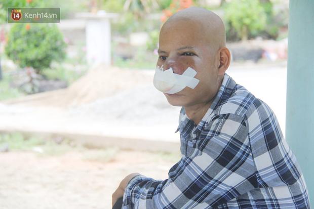 Bước đường cùng của người cha bị ung thư hốc mũi ôm 2 đứa con thơ dại: 'Con sợ cha chết, không sống cùng tụi con nữa' - Ảnh 16
