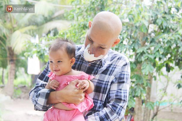 Bước đường cùng của người cha bị ung thư hốc mũi ôm 2 đứa con thơ dại: 'Con sợ cha chết, không sống cùng tụi con nữa' - Ảnh 19