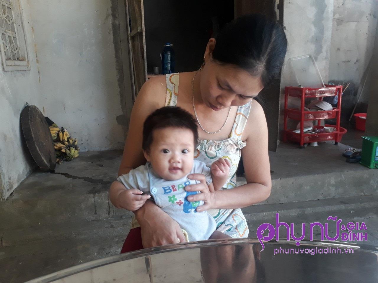 Đau đáu ánh mắt bé gái 7 tháng tuổi mang 'chân voi' đang giành giật sự sống vì căn bệnh hiếm gặp - Ảnh 2
