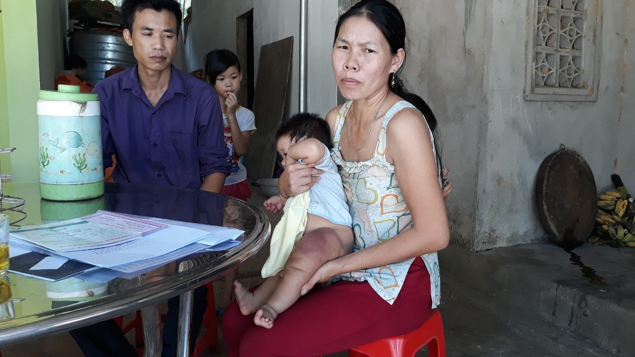 Đau đáu ánh mắt bé gái 7 tháng tuổi mang 'chân voi' đang giành giật sự sống vì căn bệnh hiếm gặp - Ảnh 3