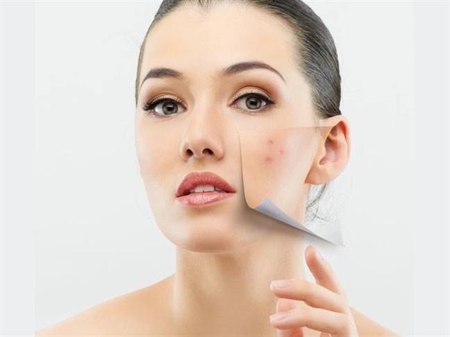 Gió mùa về và những lưu ý chăm sóc da nhất định không được bỏ qua - Ảnh 4