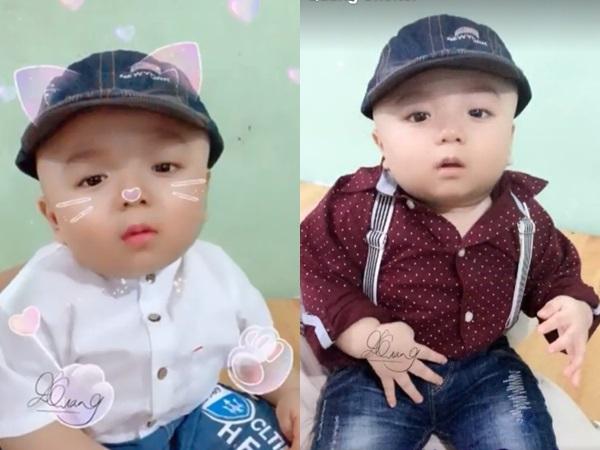 Hình ảnh mới nhất của Đức Lộc – bé trai mắc não úng thủy bị mẹ bỏ rơi: Sống sót diệu kỳ nhờ cộng đồng mạng - Ảnh 1