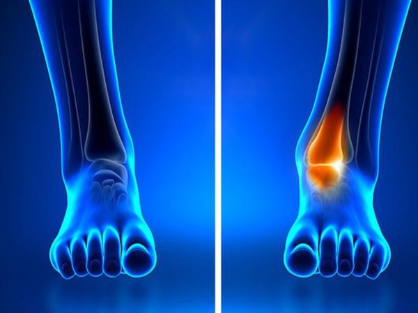Những dấu hiệu khác lạ trên cơ thể tưởng rất bình thường nhưng lại tiềm ẩn hàng loạt nguy cơ gây hại sức khỏe - Ảnh 4