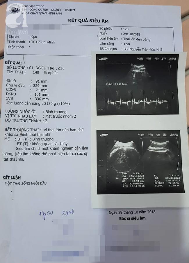 Bệnh viện Từ Dũ công bố nguyên nhân vụ thai phụ 24 tuổi bị mất con sắp sinh: Do đột tử - Ảnh 2