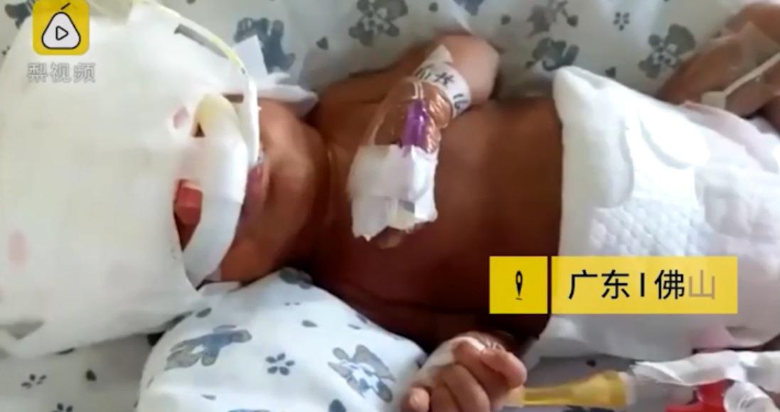 Hé lộ cuộc sống hiện tại của bé trai sinh non vào tháng thứ 5 chỉ nặng 0,53kg, làn da gần như trong suốt - Ảnh 2