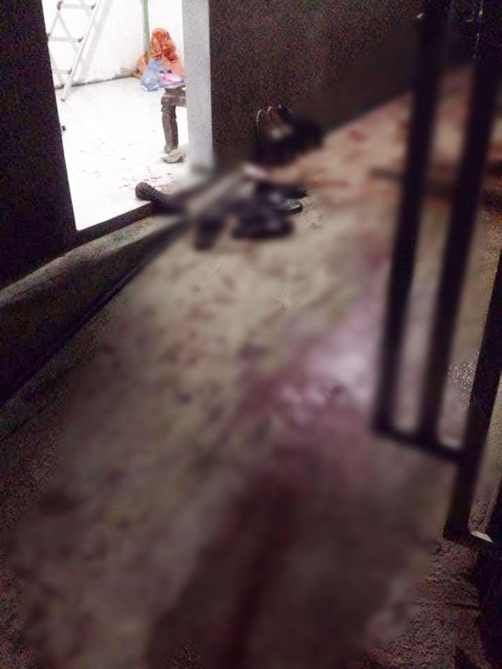 Bắc Giang: Nghi án nam thanh niên bị 3 người chém gần đứt lìa tay vì mở nhạc quá to - Ảnh 1