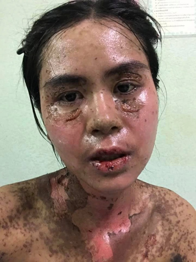 Sốc với hình ảnh cô gái bị dị ứng toàn thân, mặt biến dạng do dùng thuốc chữa đau răng khiến nhiều người thấy sợ - Ảnh 2
