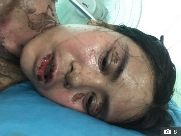 Sốc với hình ảnh cô gái bị dị ứng toàn thân, mặt biến dạng do dùng thuốc chữa đau răng khiến nhiều người thấy sợ - Ảnh 4