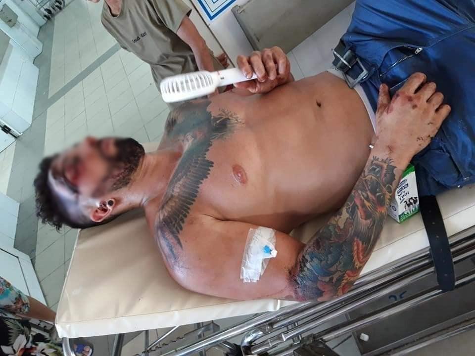 Bệnh viện Đà Nẵng lên tiếng sau khi bị tố không cấp cứu cho người nước ngoài gặp tai nạn vì không có tiền và người thân - Ảnh 1