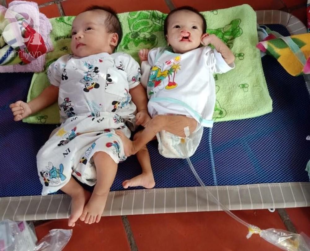 Phép màu đến với bé trai 2 tháng tuổi nặng chỉ 2 ký, mẹ nghèo không đủ tiền đưa con đi chữa bệnh - Ảnh 9
