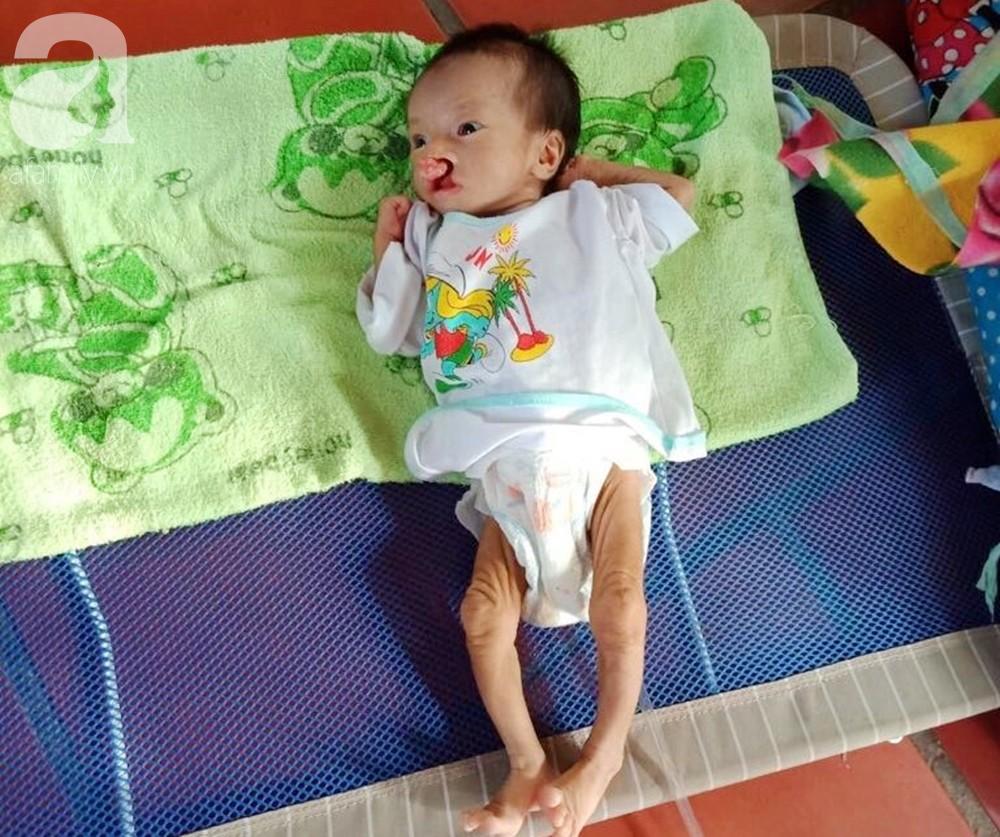 Phép màu đến với bé trai 2 tháng tuổi nặng chỉ 2 ký, mẹ nghèo không đủ tiền đưa con đi chữa bệnh - Ảnh 3