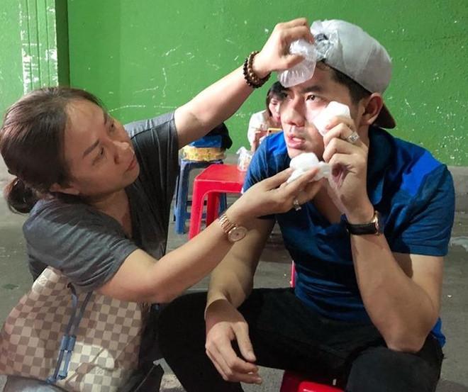 Minh Luân bị ngã đập mặt xuống sàn sân khấu trong buổi tổng duyệt - Ảnh 1