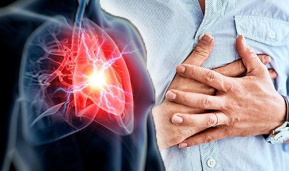 Nhồi máu cơ tim là gì? Cách sơ cứu khi gặp phải - Ảnh 1
