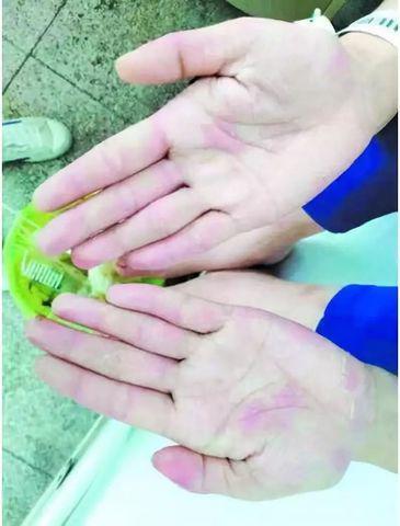 Cô gái bị mụn rộp ở tay chân sau khi ăn cá mỗi ngày, bác sĩ lý giải nguyên nhân - Ảnh 3