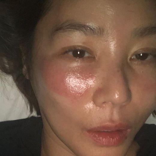 Đắp mask quá lâu, 'mẹ Kim Tan' nhận ngay cái kết đắng, làn da rát đỏ sưng tấy ai nhìn cũng xót - Ảnh 6