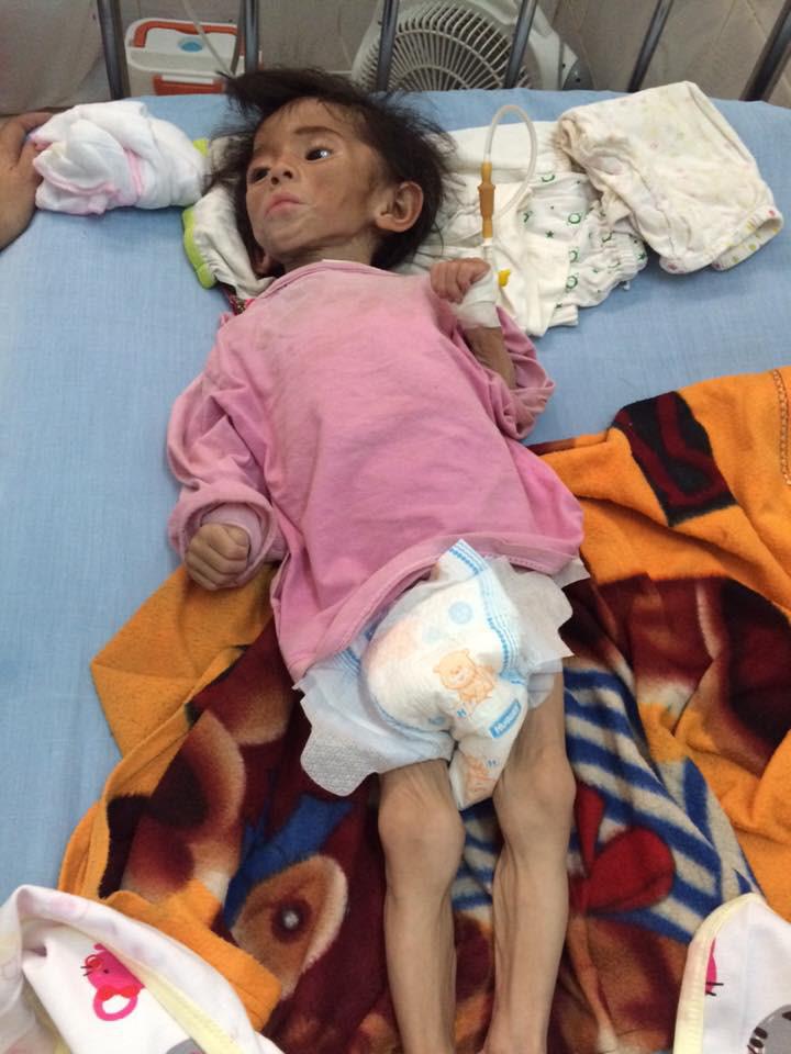 Hình ảnh mới nhất của bé gái suy dinh dưỡng ở Lào Cai: Bụ bẫm, đáng yêu khiến nhiều người vui lây - Ảnh 1