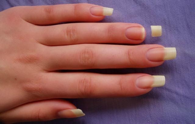 Nếu thấy bàn tay xuất hiện những dấu hiệu bất thường này, đến gặp bác sĩ ngay kẻo không kịp - Ảnh 3