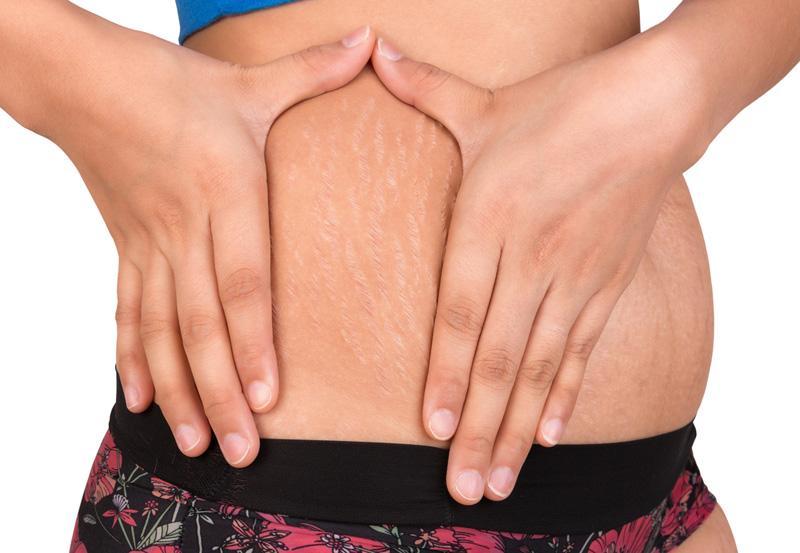 'Mịn bụng' tức thì nhờ 8 cách trị rạn da cho nàng tự tin vận bikini gợi cảm - Ảnh 1