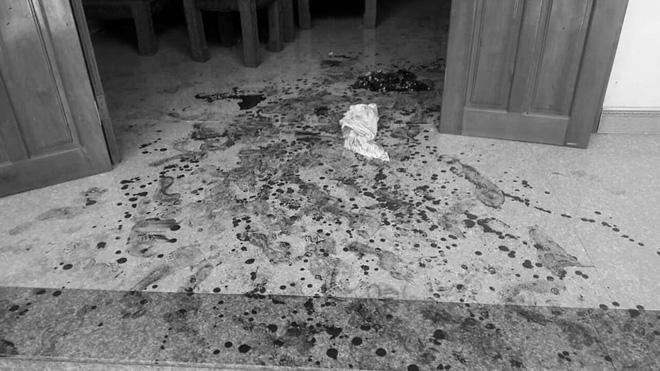 2 vợ chồng già bị người đàn ông vào tận nhà truy sát lúc giữa trưa - Ảnh 1