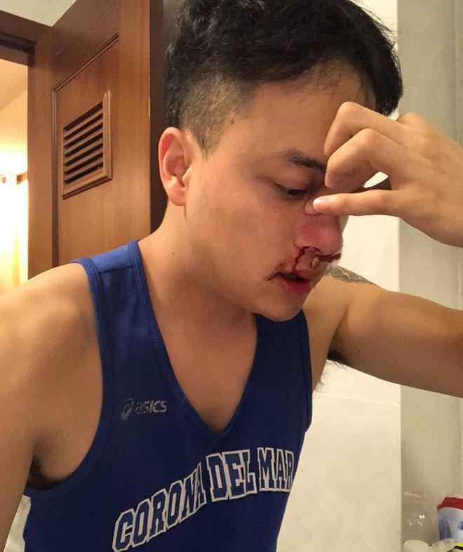 Cao Thái Sơn nhập viện khẩn cấp lúc nửa đêm - Ảnh 1