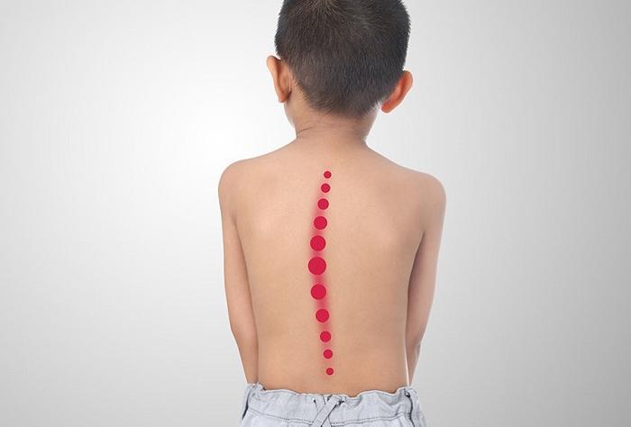 Hậu quả khủng khiếp khi trẻ bị cong vẹo cột sống, khám ngay kẻo muộn - Ảnh 1