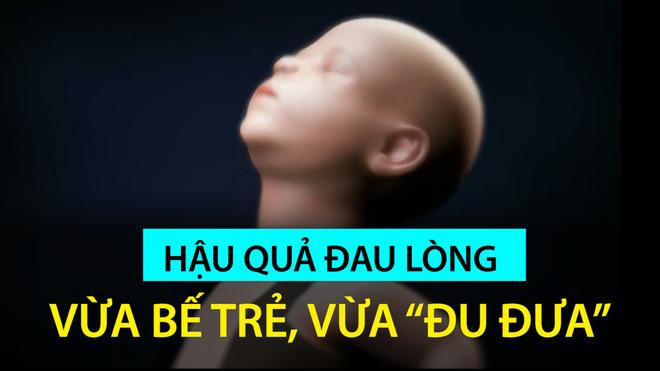 Rung lắc cho trẻ ngủ hoặc nín khóc có thể gây tử vong: Người lớn cần dừng ngay lập tức - Ảnh 3