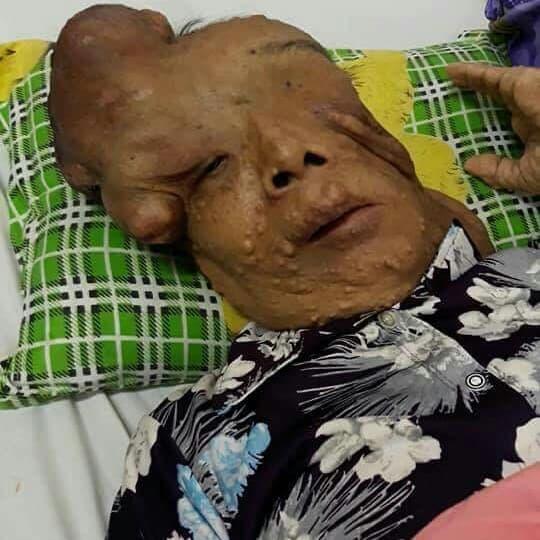 Hẩm hiu số phận của người đàn bà mang khối u khổng lồ trên mặt: 'Xin cho tôi cơ hội sống bên mẹ già' - Ảnh 1