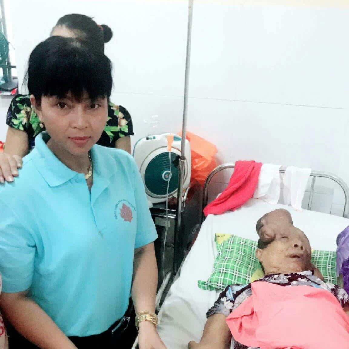 Hẩm hiu số phận của người đàn bà mang khối u khổng lồ trên mặt: 'Xin cho tôi cơ hội sống bên mẹ già' - Ảnh 2