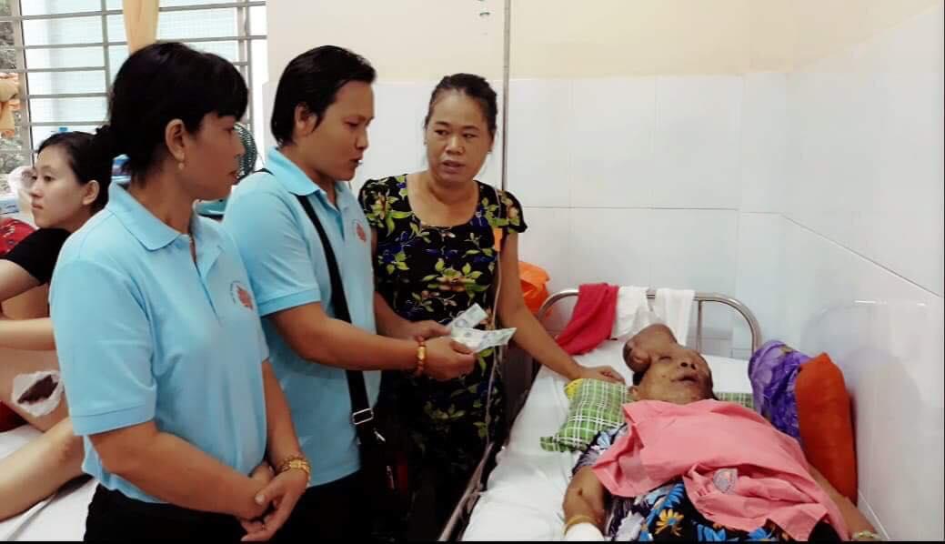 Hẩm hiu số phận của người đàn bà mang khối u khổng lồ trên mặt: 'Xin cho tôi cơ hội sống bên mẹ già' - Ảnh 3