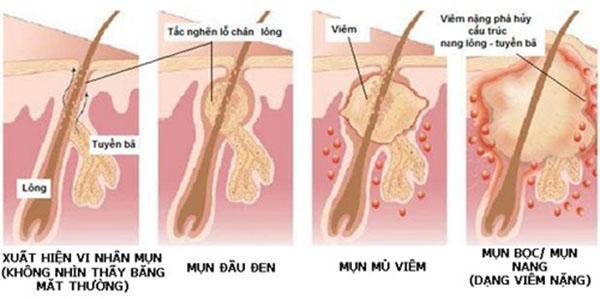 7 cách trị mụn bọc hiệu quả nhanh, không lo thâm sẹo ngay tại nhà - Ảnh 2