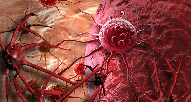 Duy trì 10 thói quen mỗi ngày, ung thư khó tới gần bạn - Ảnh 1