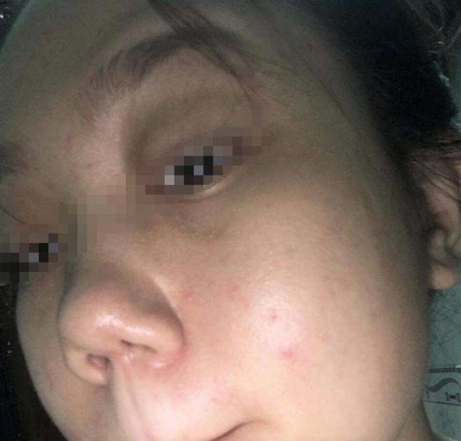 Cô gái tố thẩm mỹ viện làm hỏng mũi, đe dọa khách hàng - Ảnh 2