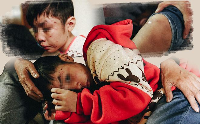 Đau lòng những đứa trẻ bị cha mẹ kế bạo hành gây chấn động: Đánh đến rạn xương sọ, nhốt trong nhà đánh rồi livestream - Ảnh 1