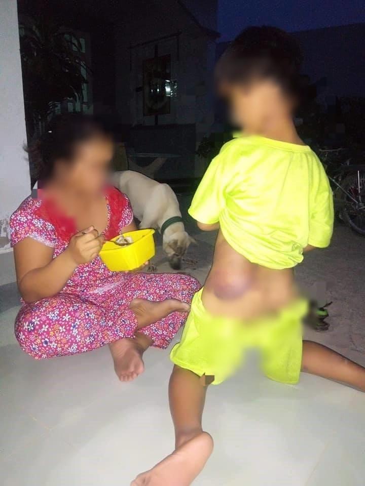 Long An: Bé trai khuyết tật 7 tuổi bị cô giáo đánh bầm tím cả cơ thể - Ảnh 1