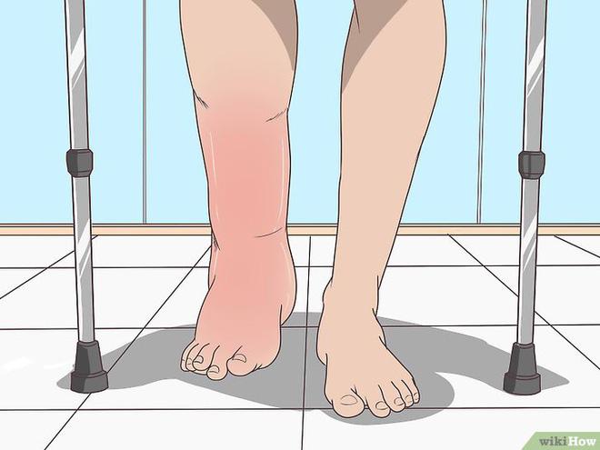Những dấu hiệu sớm cảnh báo bạn đang bị rối loạn chức năng thận - Ảnh 2