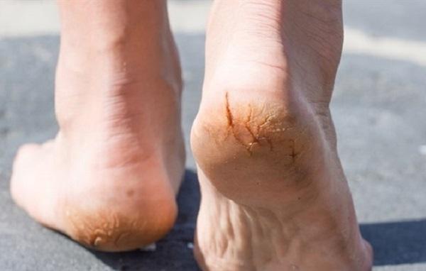 """Những dấu hiệu ở bàn chân dễ cảnh báo cơ thể mang """"trọng bệnh"""" - Ảnh 1"""