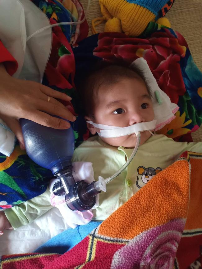 """Ánh mắt cầu cứu của bé trai 8 tháng sống phụ thuộc vào máy thở: """"Nếu ngừng bóp bình oxy con tôi sẽ ngưng thở"""" - Ảnh 1"""
