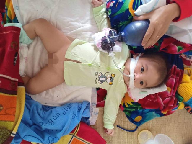 """Ánh mắt cầu cứu của bé trai 8 tháng sống phụ thuộc vào máy thở: """"Nếu ngừng bóp bình oxy con tôi sẽ ngưng thở"""" - Ảnh 2"""