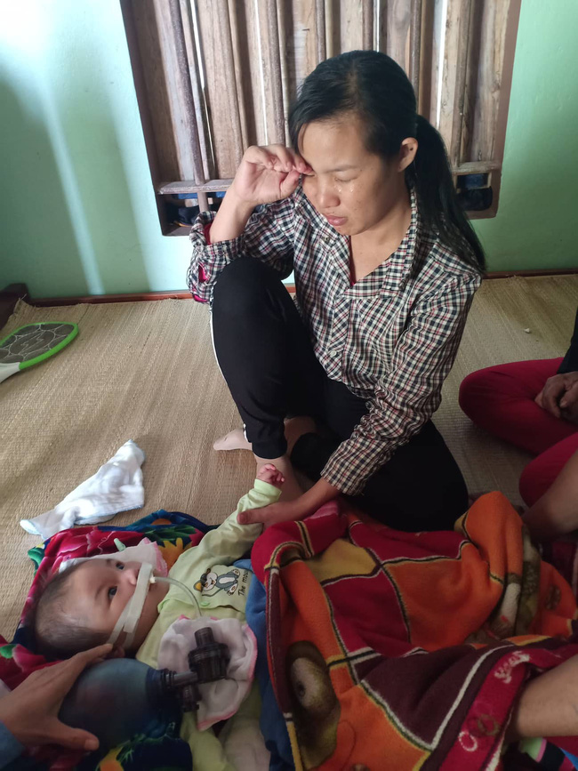 """Ánh mắt cầu cứu của bé trai 8 tháng sống phụ thuộc vào máy thở: """"Nếu ngừng bóp bình oxy con tôi sẽ ngưng thở"""" - Ảnh 7"""