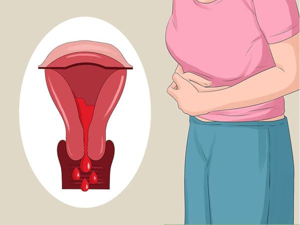 Cô gái người Úc mắc bệnh lạc nội mạc tử cung khiến kỳ đèn đỏ mỗi tháng trở thành một nỗi ám ảnh - Ảnh 5