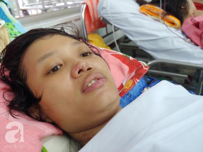 Mẹ mới sinh phải cắt cụt tứ chi sau khi bị áp xe vú: Bác sĩ sản khoa tiết lộ thông tin bất ngờ - Ảnh 1