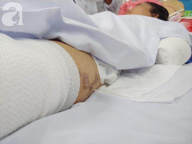 Mẹ mới sinh phải cắt cụt tứ chi sau khi bị áp xe vú: Bác sĩ sản khoa tiết lộ thông tin bất ngờ - Ảnh 6
