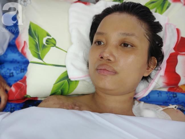 Mẹ mới sinh phải cắt cụt tứ chi sau khi bị áp xe vú: Bác sĩ sản khoa tiết lộ thông tin bất ngờ - Ảnh 9