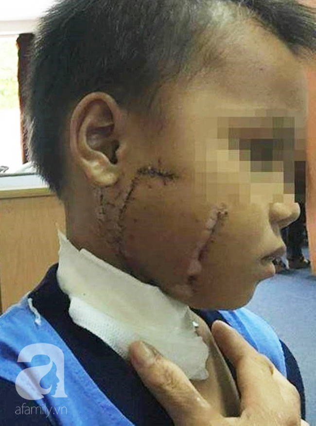 Thương tâm: Mẹ chở con không đội nón bảo hiểm, nhiều trẻ bị tai nạn cực nặng đến biến dạng mặt - Ảnh 4
