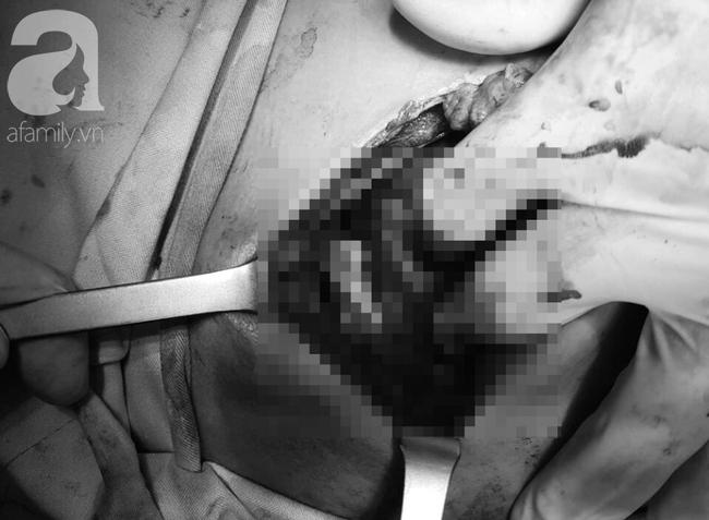 Tai nạn đau lòng: Đi làm mướn nuôi cha tâm thần, bé trai 13 tuổi bị thanh sắt máy cắt lúa đâm xuyên thấu ngực - Ảnh 5