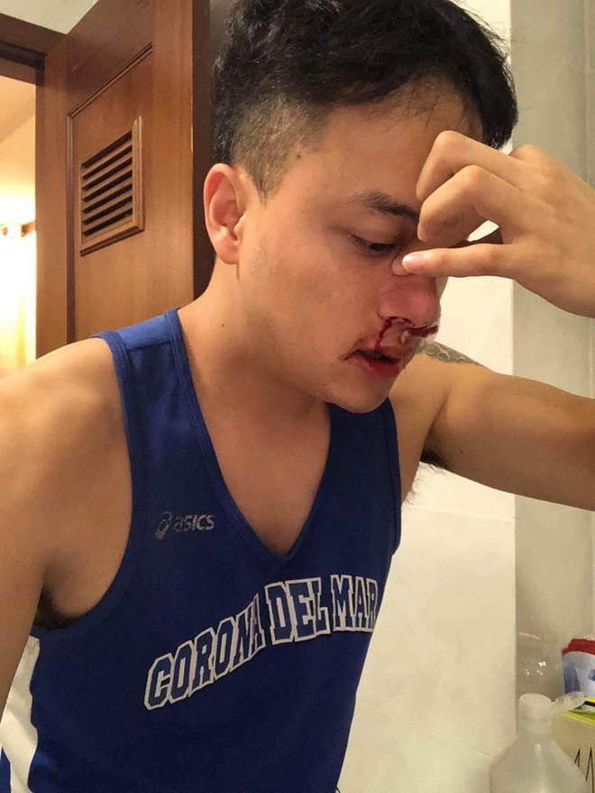Cao Thái Sơn chia sẻ tình hình sức khoẻ sau cuộc phẫu thuật vì vỡ mạch máu mũi - Ảnh 2