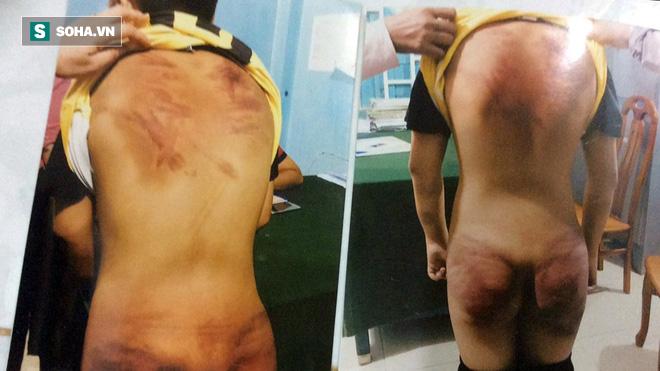 Người mặc áo tu hành tra tấn dã man bé trai 11 tuổi: 'Ông ta đánh đập con tôi 3 ngày liên tục' - Ảnh 3