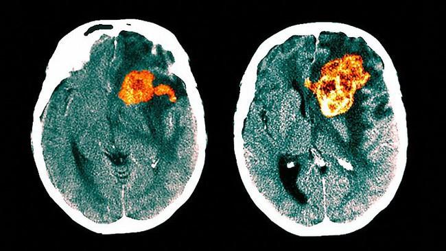 Tưởng đau đầu do thiếu sắt, 3 tháng sau cô gái qua đời vì bị ung thư não nguy hiểm: Đừng bỏ qua những triệu chứng dễ nhầm lẫn này - Ảnh 4