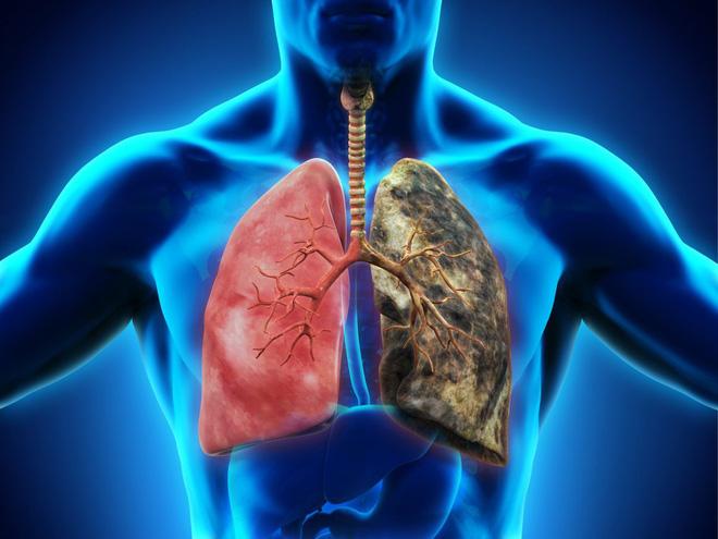Ung thư phổi đang ngày càng trẻ hoá: Đừng để đến lúc phát hiện thì đã quá muộn - Ảnh 1